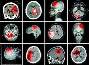 MRI画像